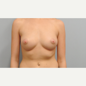 18-24 year old woman treated with Breast Augmentation before 3071090