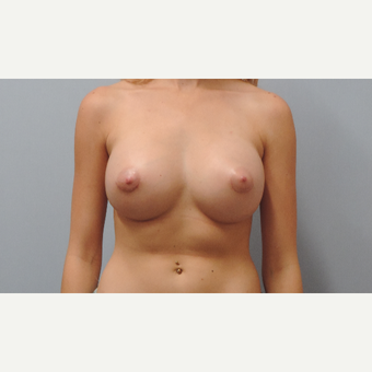 18-24 year old woman treated with Breast Augmentation after 3071090