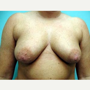 45-54 year old woman treated with Breast Augmentation before 3168216