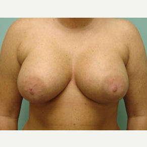 45-54 year old woman treated with Breast Augmentation after 3168216