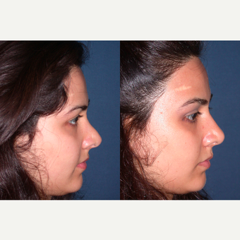 25-34 year old woman treated with Revision Rhinoplasty after 3521285