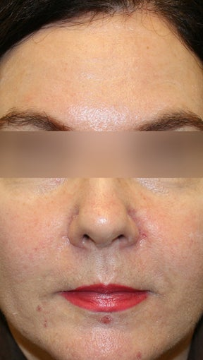 Botox and Restylane after 994190