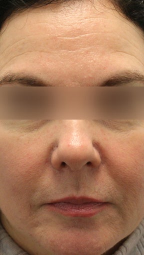 Botox and Restylane before 994190