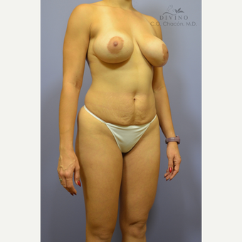 25-34 year old woman treated with Mommy Makeover before 3421628