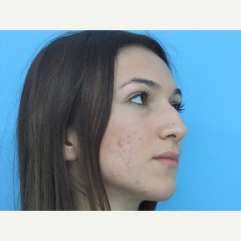 18-24 year old woman treated with Nose Surgery