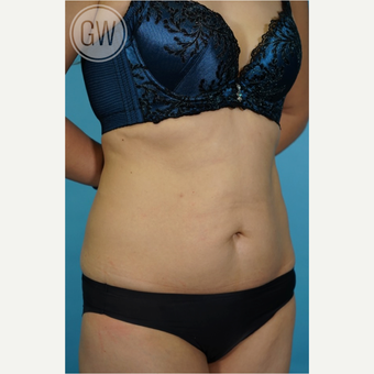 35-44 year old woman treated with Tummy Tuck before 3016683