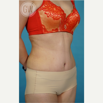 35-44 year old woman treated with Tummy Tuck after 3016683