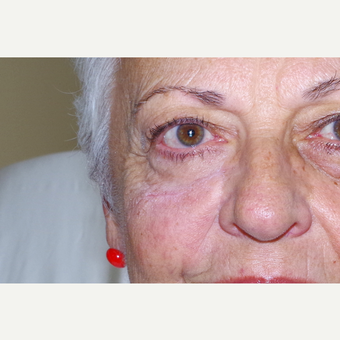 65-74 year old woman treated with Facial Reconstructive Surgery after 3741614