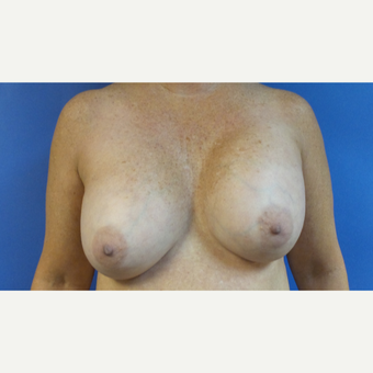 62 year old woman treated with Breast Implant Revision with Breast Lift before 3490320