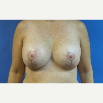 62 year old woman treated with Breast Implant Revision with Breast Lift after 3490320