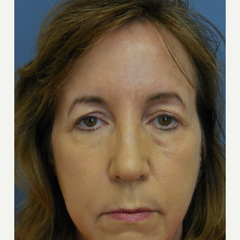 45-54 year old woman treated with upper and lower eyelid surgery before 3652494