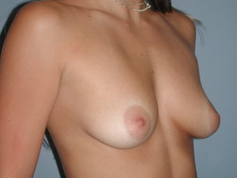 Breast Augmentation on 30-year-old Woman 1143461