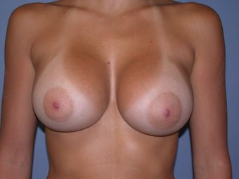 Breast Augmentation on 30-year-old Woman after 1143461