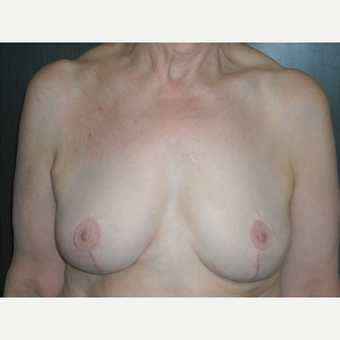 71 year young breast reduction patient. after 3093932