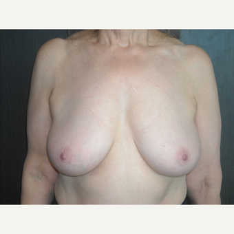 71 year young breast reduction patient. before 3093932