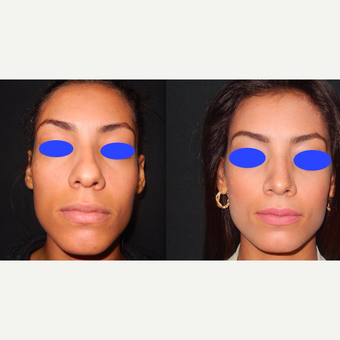 25-34 year old woman treated with Rhinoplasty before 3390093