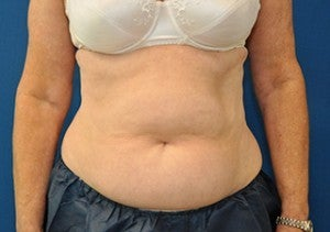 CoolSculpting after 1078320