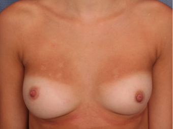 18-24 year old woman treated with Nipple Surgery after 3705909