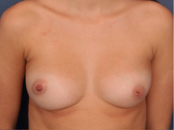 18-24 year old woman treated with Nipple Surgery before 3705909