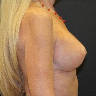 65-74 year old woman treated with Breast Lift with Implants after 2027092