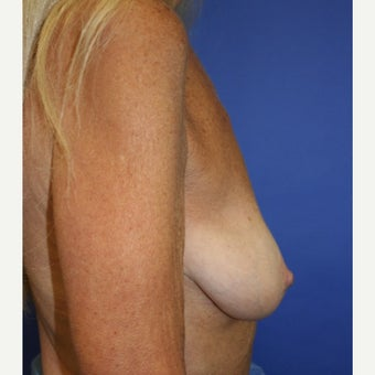 65-74 year old woman treated with Breast Lift with Implants before 2027092