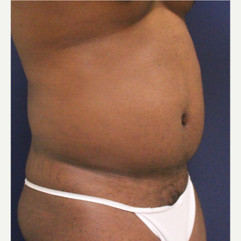 25-34 year old man treated with Smart Lipo after 3237063