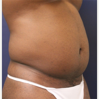 25-34 year old man treated with Smart Lipo before 3237063