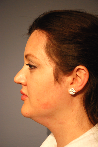 25-34 year old woman treated with Kybella before 2786826