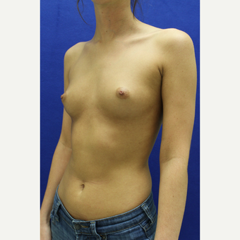 25-34 year old woman treated with Breast Augmentation before 3384457
