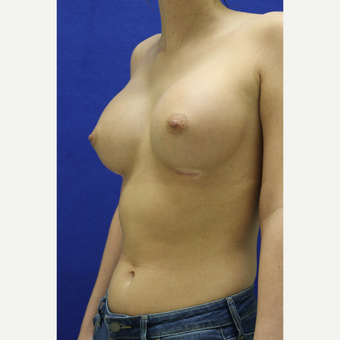 25-34 year old woman treated with Breast Augmentation after 3384457