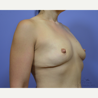 35-44 year old woman treated with Breast Lift with Implants before 3386472
