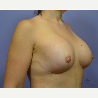 35-44 year old woman treated with Breast Lift with Implants after 3386472