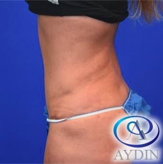 45-54 year old woman treated with Tummy Tuck after 3325744
