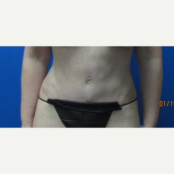 42 year old woman Tummy Tuck after 3703643