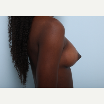 Breast Augmentation after 3508100