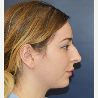 18-24 year old woman treated with Rhinoplasty before 3503427
