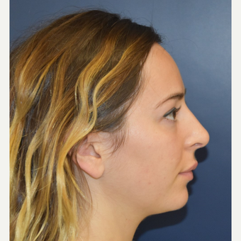 18-24 year old woman treated with Rhinoplasty after 3503427