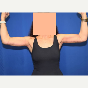 Arm Lift after Weight Loss after 3140901