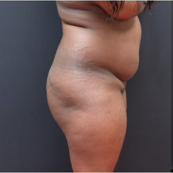 25-34 year old woman treated with Power-Assisted Liposuction (PAL) before 3363948