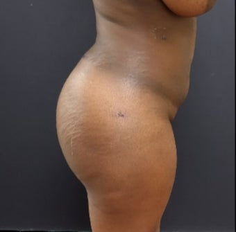 25-34 year old woman treated with Power-Assisted Liposuction (PAL) after 3363948