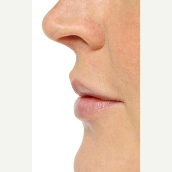 35-44 year old woman treated with Lip Augmentation after 1707951