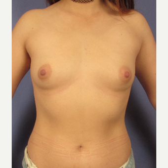 25-34 year old woman treated with Breast Implants before 3095772
