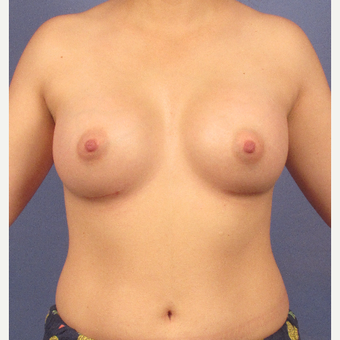 25-34 year old woman treated with Breast Implants after 3095772