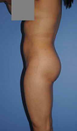 Buttocks Enhancement after 296685
