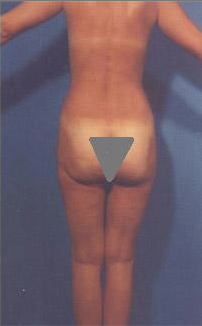 Buttocks Enhancement 296685