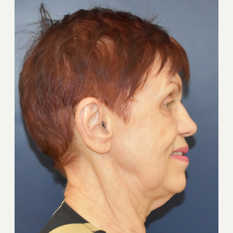 65-74 year old woman treated with Lower Face Lift before 3449040
