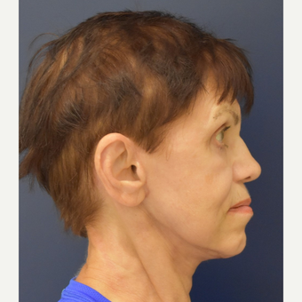 65-74 year old woman treated with Lower Face Lift after 3449040