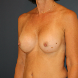 35-44 year old woman treated with Breast Implants after 3595787