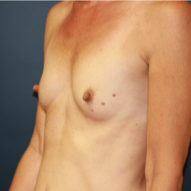 35-44 year old woman treated with Breast Implants before 3595787