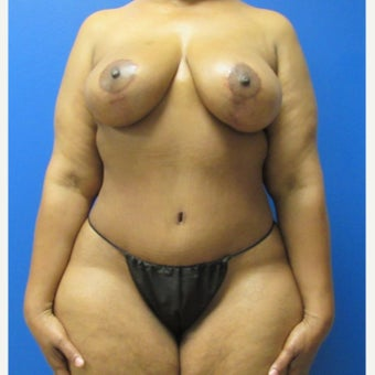 51 year old woman treated with Mommy Makeover after 2018724